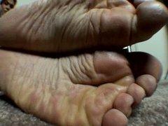 wrinkled soles 3