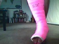 cast fetish - broken ankle