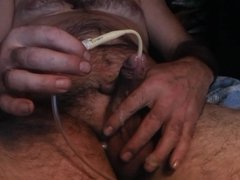 Catheter insertion and cumming part 2