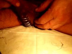 Remove sutures and open up