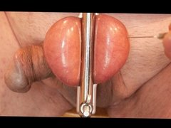 Tapping insterstial fluid