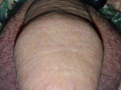 My Penis up close