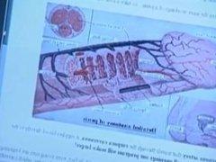 ProSolution Penis Enlargement Pills are SCAM (Short Version)