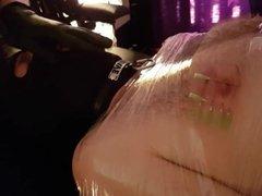 Breath Control Needles
