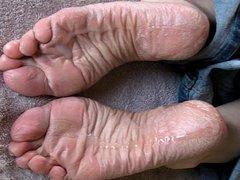 SPERM SOAK for Lyn's dry soles.