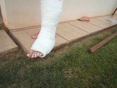 leg cast jump