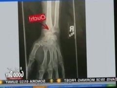 Blonde girl explains purple LAC broken arm