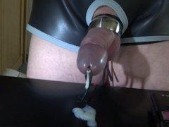 Cumming through dilator 2 - estim
