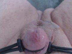 Electro Stimulation 3