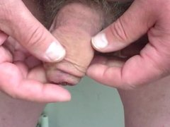 20 casino chips in foreskin - part 1 of 2